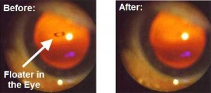 Eye Floaters Result Of Natural Treatment