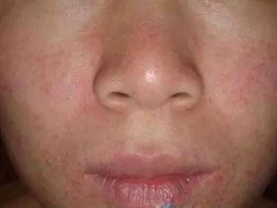 怎樣才能有效擺脫急性濕疹?