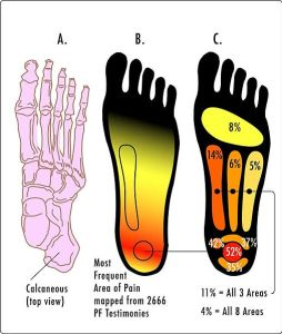 Pain areas associated with Plantar Fascitis.