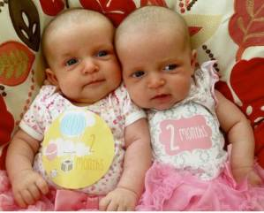 Twins pregnancy transforms Akron Children's employee into patient