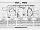 Prescindir de las gafas mediante cirugía DIARI DE SABADELL