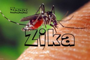 First Case of Probable Zika Related Microcephaly