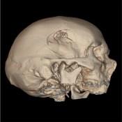 Exploring Essential Radiology