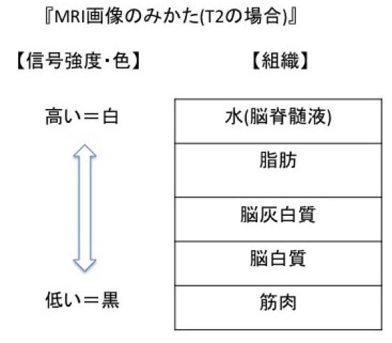 MRI T2