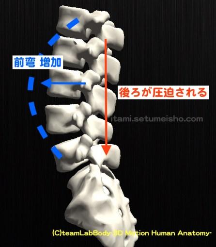 椎間関節圧迫