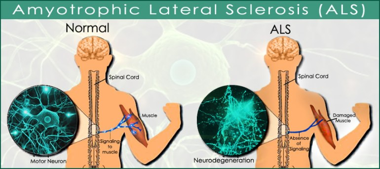 the causes symptoms and treatment of amyotrophic lateral schlerosis