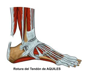 C3.1-TENDON-DE-AQUILES----ROTURA