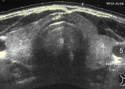 thyroid_sonogram