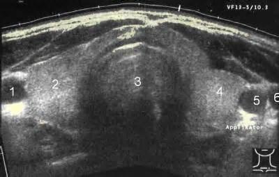 Ultrasound Image of Thyroid GLand