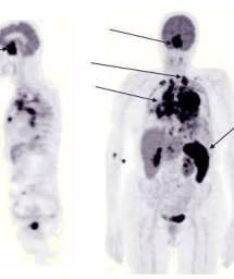 naltrexone renal dose