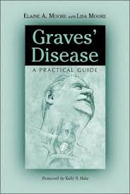 Graves Disease Elaine Moore