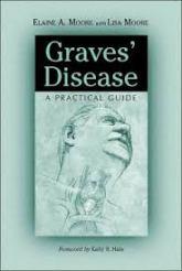 Graves Disease Elaine Moore