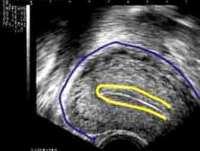 uterus_stripe122_colo_