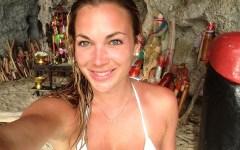 Alyssa Ramos sunburn