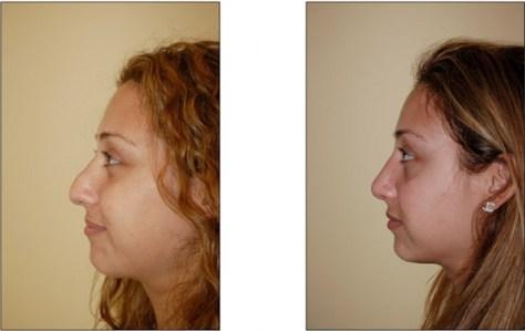 ethnicRhinoplasty