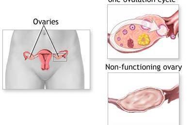 Premature-Ovarian-Failure-11