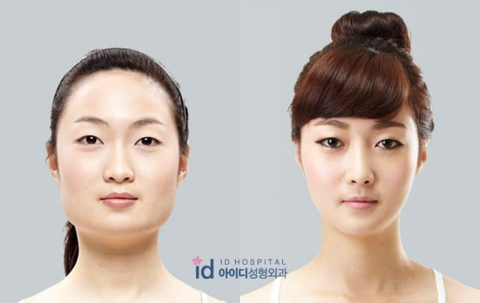 LA Chirurgie en Corée du Sud