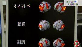 オノマトペを使ったときの脳