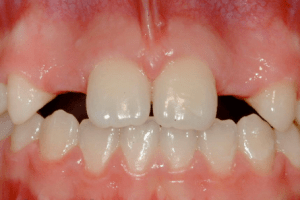 What can we do about missing lateral incisors?