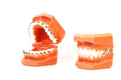 festsitzende-zahnspange