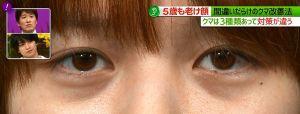 目の下のクマ10