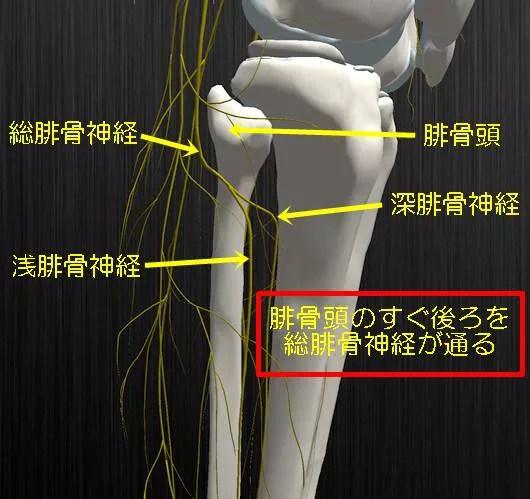 総腓骨神経と腓骨頭の関係腓骨神経麻痺