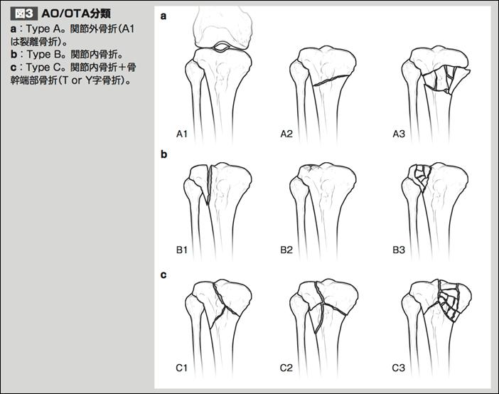 脛骨近位端骨折AOOTA分類