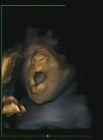 A 4D ultrasound scan shows a foetus yawning in the womb during a study by Durham and Lancaster Universities and released in Durham, northern England