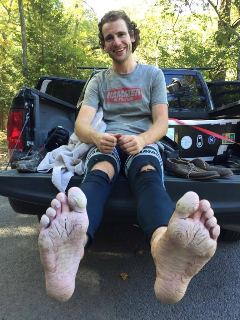 Here's Brad's feet after the race. Just to give you a taste of the importance of dry feet. Mine were nowhere near this bad.