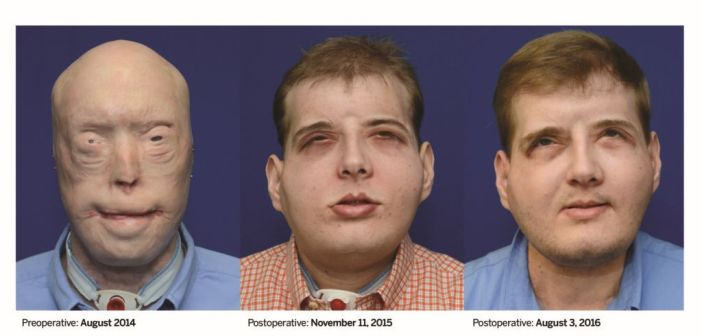 A Year Later, Firefighter with Most Extensive Face Transplant in History is 'Thriving'