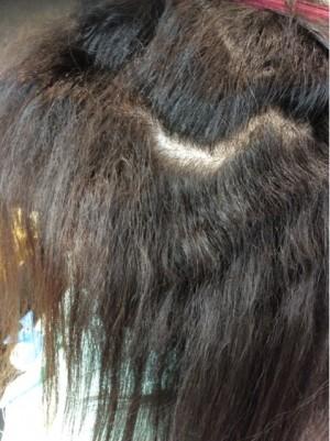 生まれつき水分の無い状態で生えてきている髪の毛です。髪の毛は根元6センチは強い癖ですが、髪の毛は弱く引っ張ると切れそうな感じです。半年前に縮毛矯正をしている状態ですのでなんとかボワボワな状態で収まっていますが、髪の毛は縛らないと外出はできないでしょう