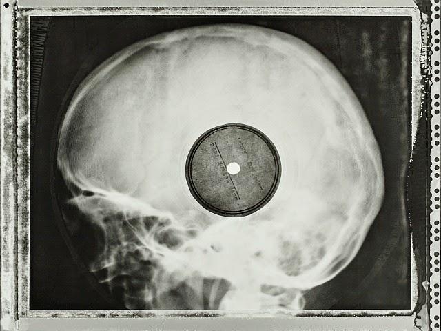 X-ray LP