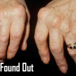 A Explanation of What Occurs Inside the Body When Knuckles Are Cracked
