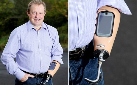 Man Has Smartphone Dock Installed in Prosthetic Arm