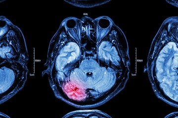 Brain Scan of a Personal Injury Victim with Head Trauma