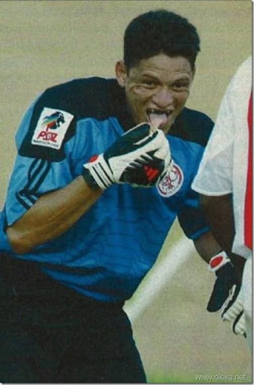 soccer-lose-teeth-dentures-4