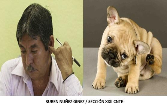 RUBEN-NUNEZ-DIFERENCIAS