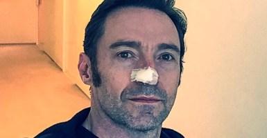 Hugh Jackman fue sometido a la sexta cirugía para el cáncer