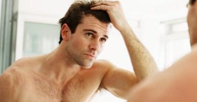 consejos para evitar la calvicie