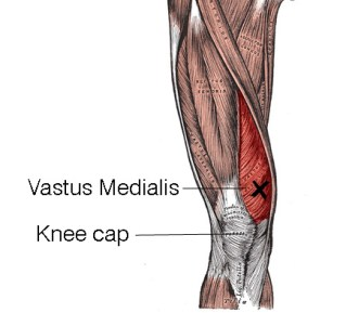 Vastus Medialis - Knee Collapsing Trigger Point