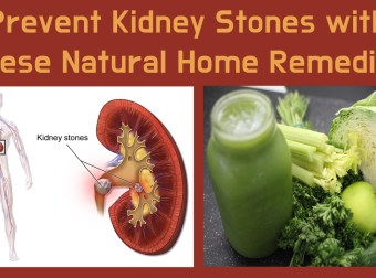 Prevent Kidney Stones with These Natural Home Remedies