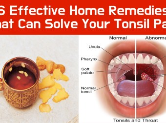 6 Effective Home Remedies That Can Solve Your Tonsil Pain