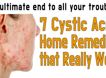 7 Cystic Acne Home Remedies that Really Work