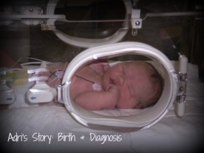 Adri's Story: Birth & Congenital Heart Defect Diagnosis