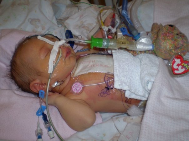 Adri's Open Sternum after Open Heart Surgery to fix a congenital heart defect