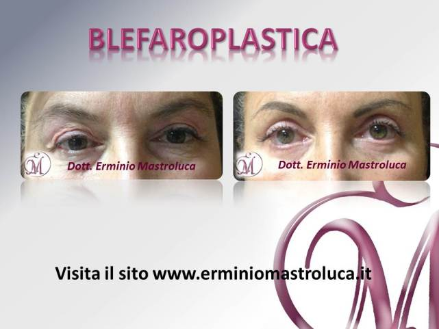 Blefaroplastica 2