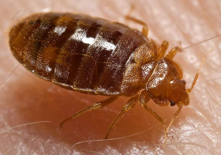 Treatment for Bed Bug Bites