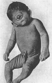Cyclopia