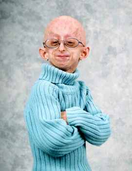 Progeria8