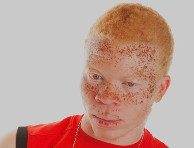 Albino 3